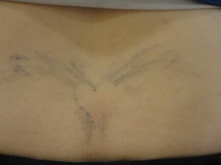Tattoo removal in Hurst Texas After 4 treatments
