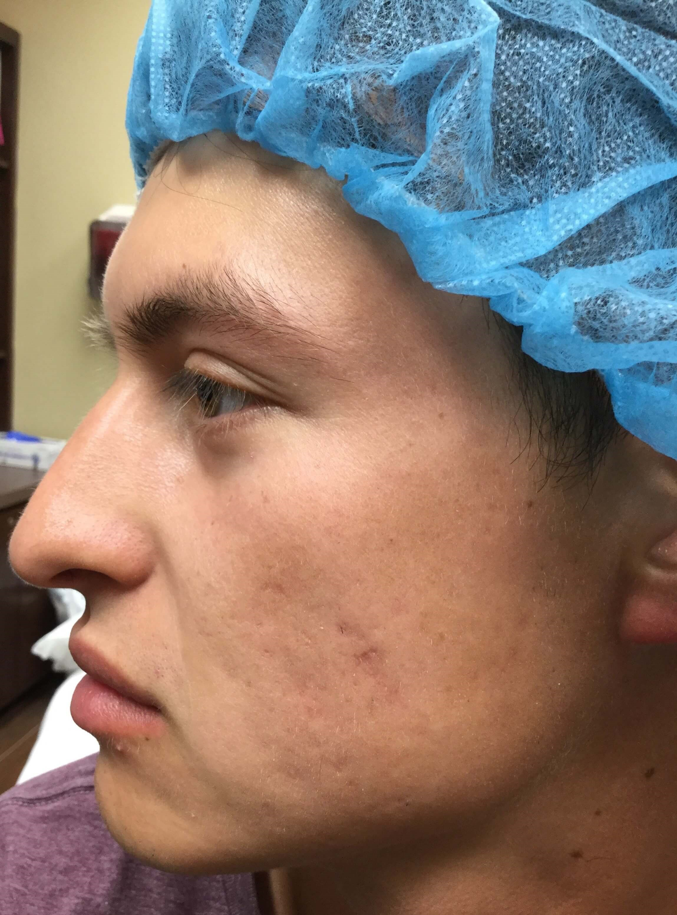 Skinpen Microneedling After 2 treatments