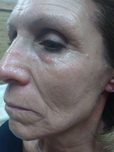 Hydrafacial MD After Hydrafacial