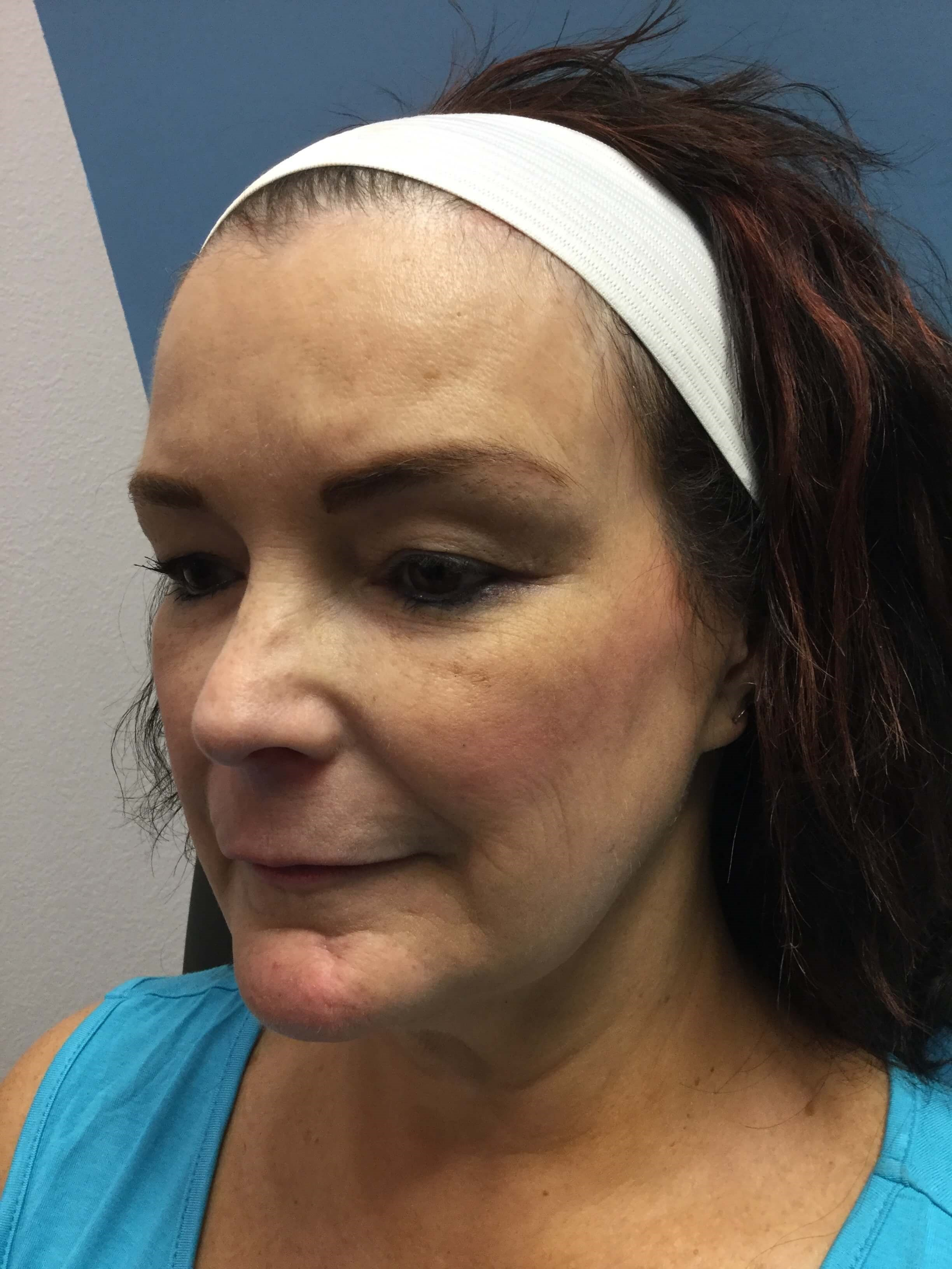 Dysport and Restylane Before