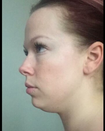Kybella for submental fat! Before