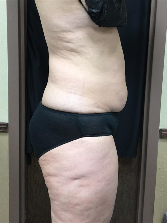 Coolsculpting abdomen & flanks Before