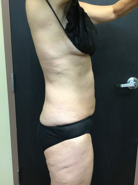 Coolsculpting abdomen & flanks After