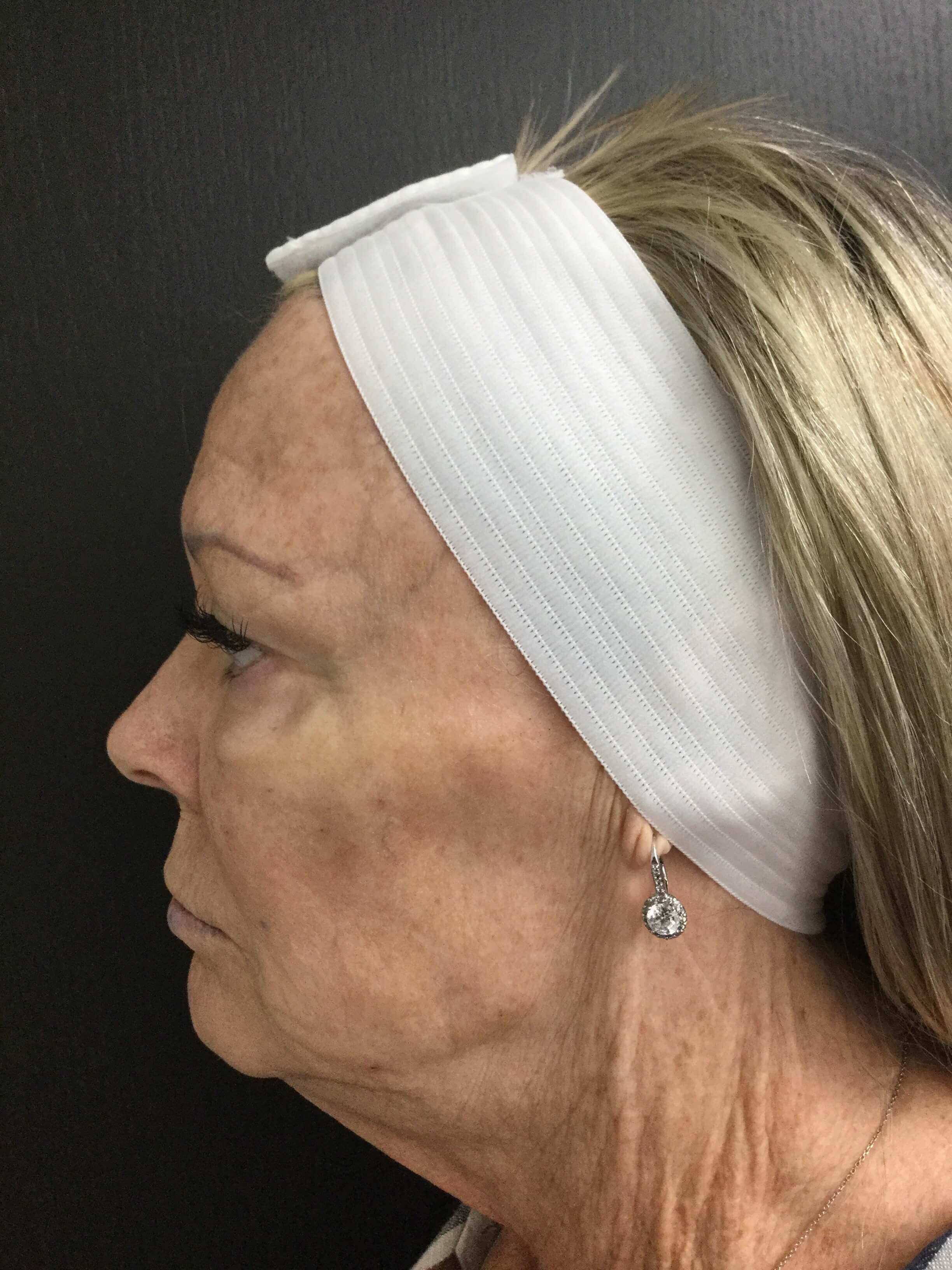Voluma Filler Cheeks & Jawline Before