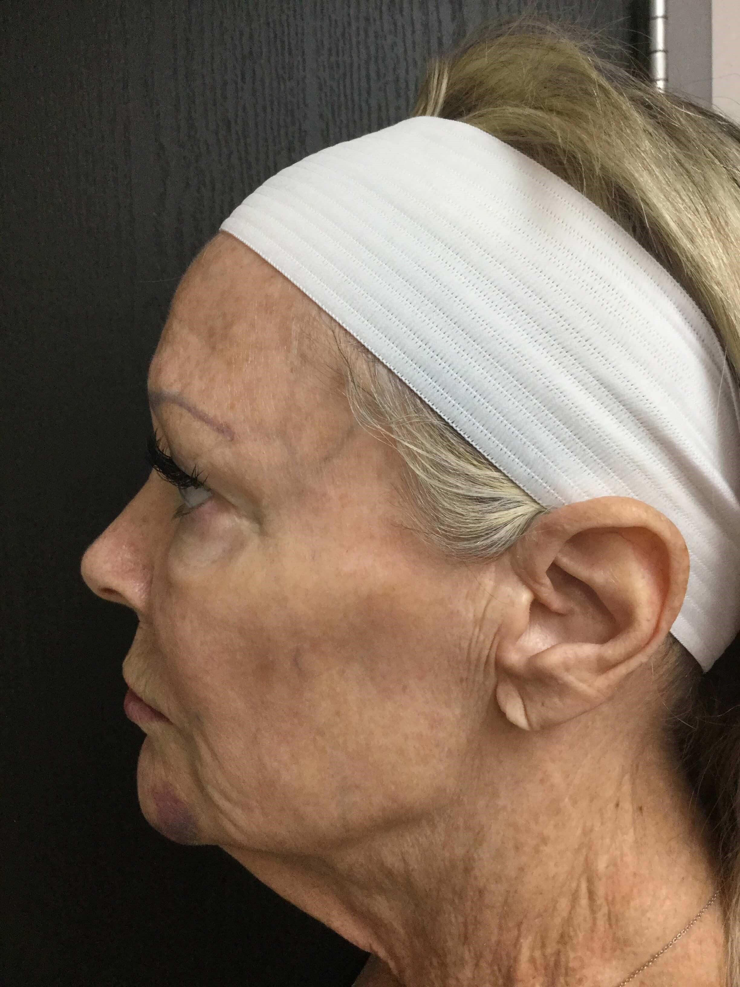Voluma Filler Cheeks & Jawline After
